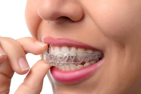 Schienentherapie Dr. Bschorer Dinkelsbühl Zahnarzt