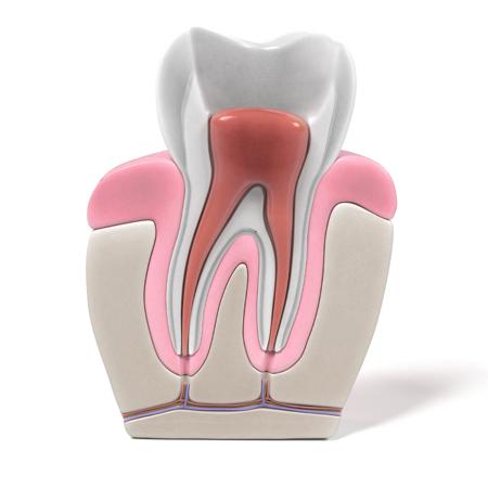 Wurzelkanalbehandlung Dr. Bschorer Dinkelsbühl Zahnarzt