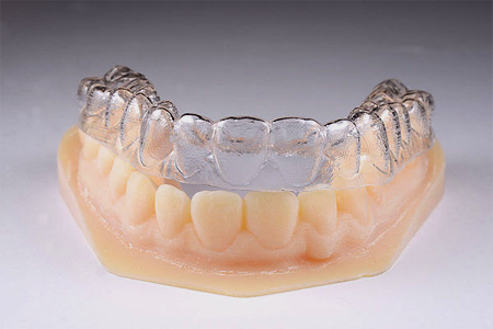 Kieferorthopädie Dr. Bschorer Dinkelsbühl Zahnarzt